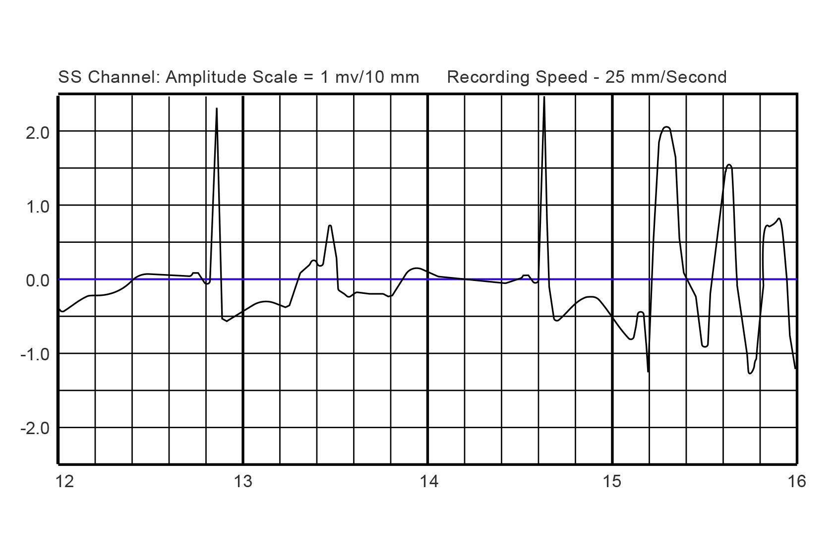 Lifevest amplitude chart