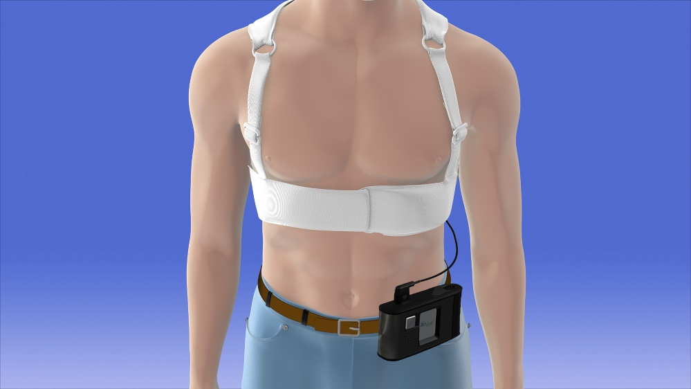 Illustration of the ZOLL LifeVest wearable defibrillator for heart patients